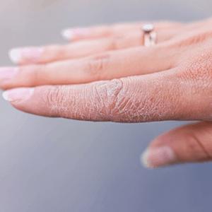 Les soins des mains