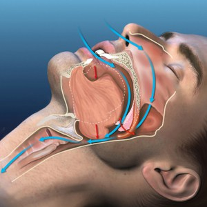 medische illustratie van snurken