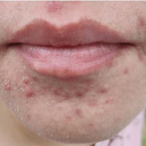 acne op kin van vrouw
