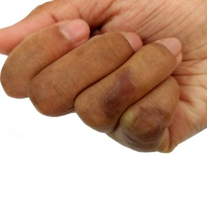 brûlure sur la main