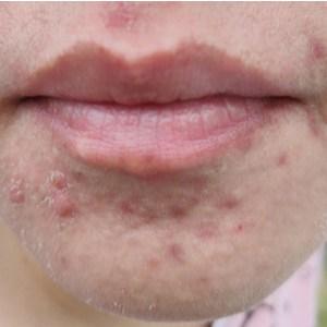 acné sur le menton de la femme