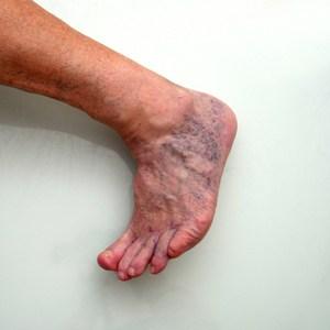 voet met spataderen