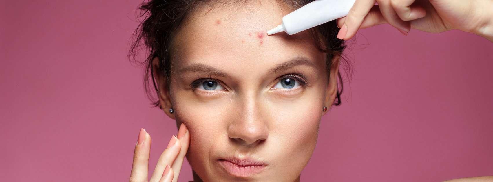 Acne voorkomen en behandelen