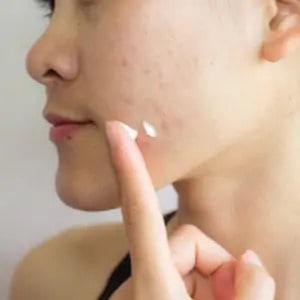 crème contre l'acné