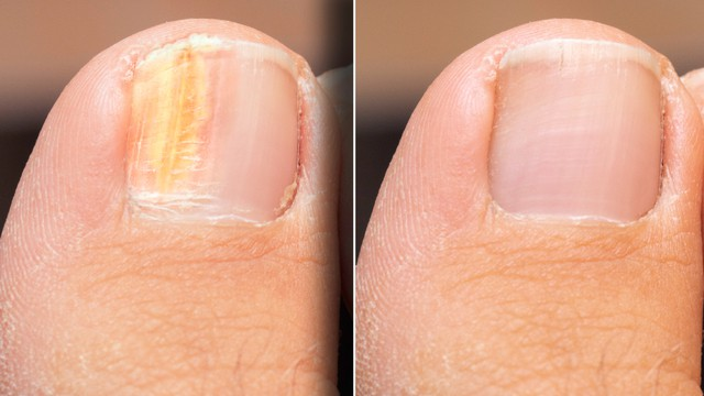 ongle fongique vs. ongle normal