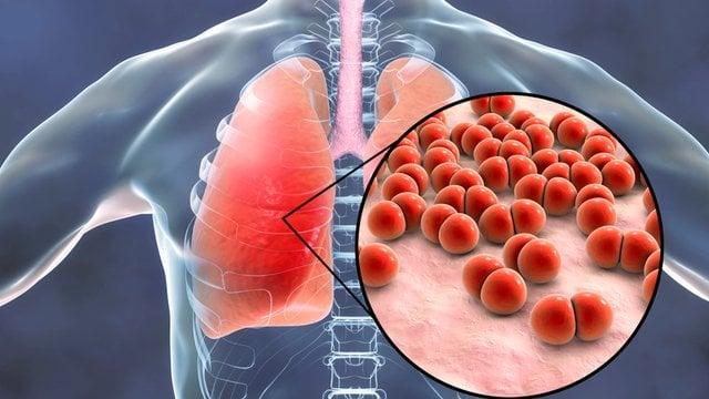 oorzaak longontsteking