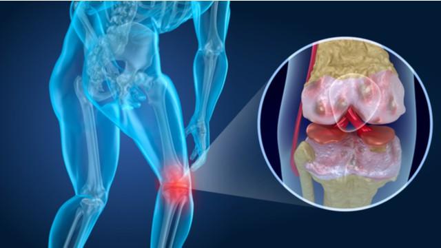 cause de l'arthrose du genou